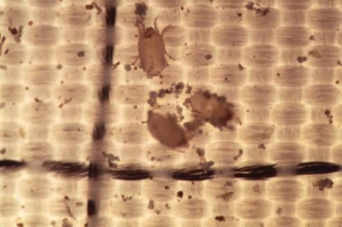 Eliminar ácaros y bacterias de nuestra cama